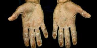 Die Hände der besten Kletterer